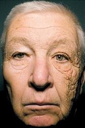 光老化の実際がわかる写真