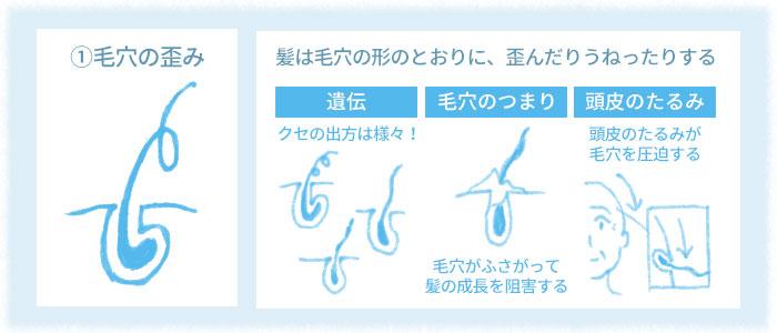 湿気で髪が膨らむ 「吸水性の偏り」 毛穴の形が歪んでいると、そこから生えてくる
